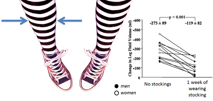 impact of compression stockings on fluid build up in legs