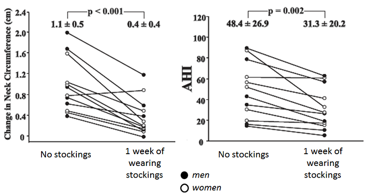 change in neck circumferance and apneic events when wearing compression stockings