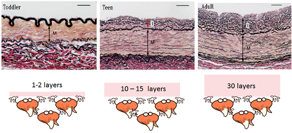 cross section through blood vessel at different ages