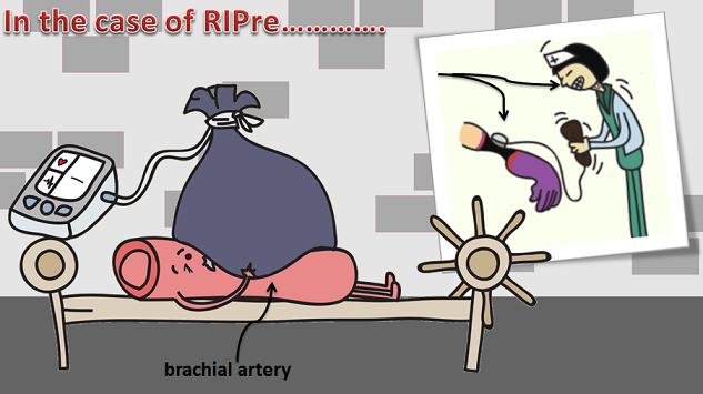 blood vessel torture using RIPre