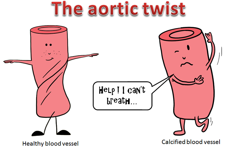 the aortic twist